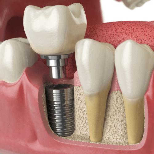 exito de un implante