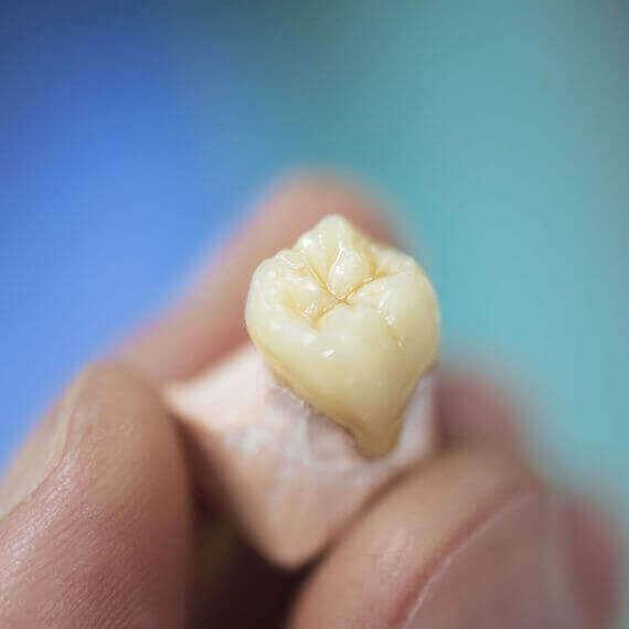 ventajas de un implante dental