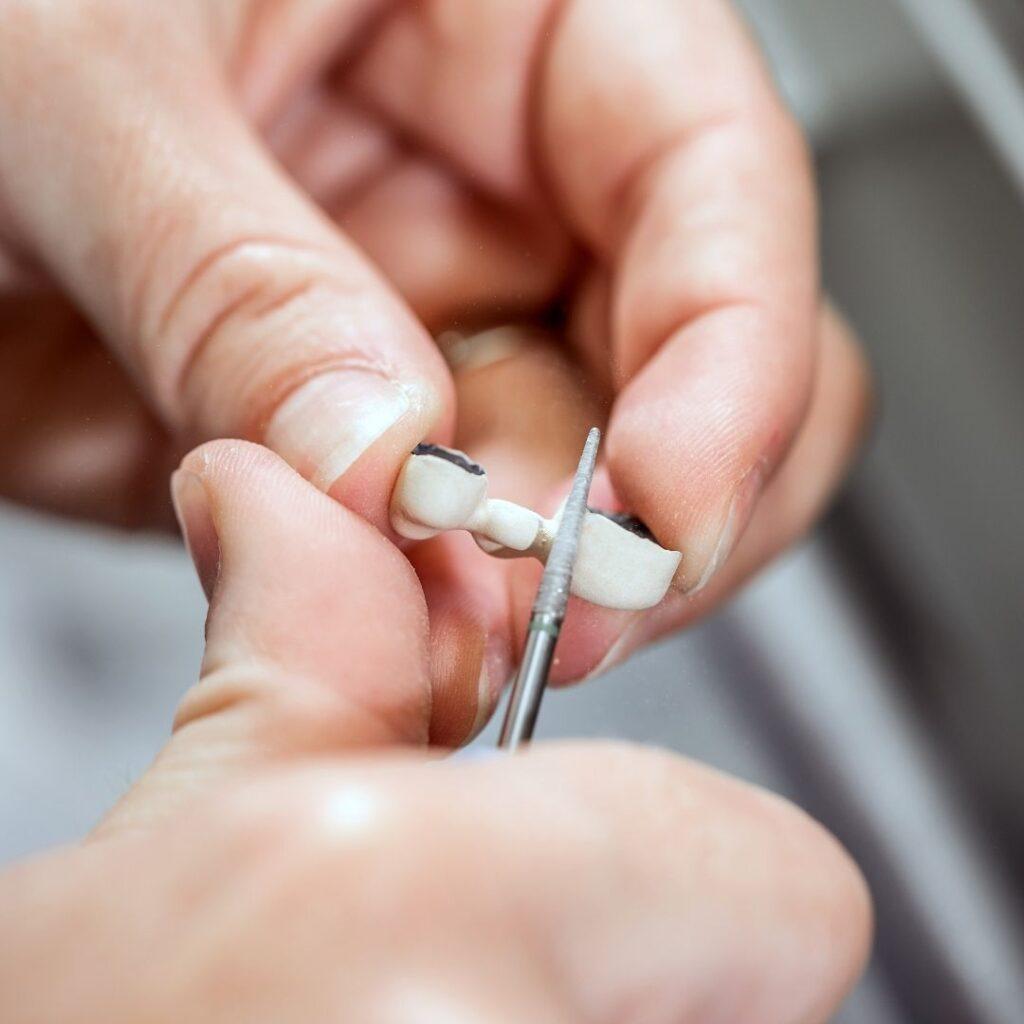 ¿Qué es la osteointegración de los implantes dentales?